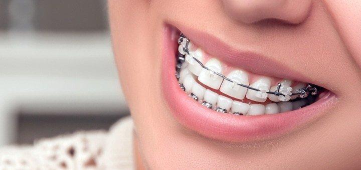 Скидка до 56% на установку брекет-систем в стоматологии «Klinik im Zentrum»