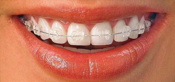 Скидка до 64% на установку брекет-систем в стоматологическом центре «Dentopolis»