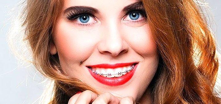 Скидка до 75% на установку брекет-системы в стоматологии на Кирилловской