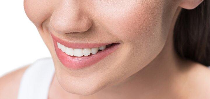 Скидка до 58% на установку виниров в стоматологии «Implant Start»