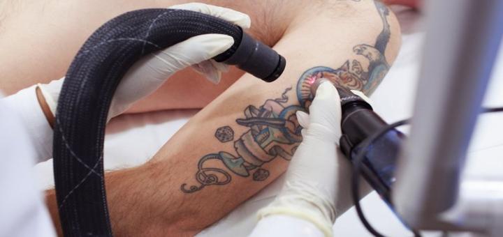 Лазерное удаление тату в студии женского совершенствования «PICASSO»