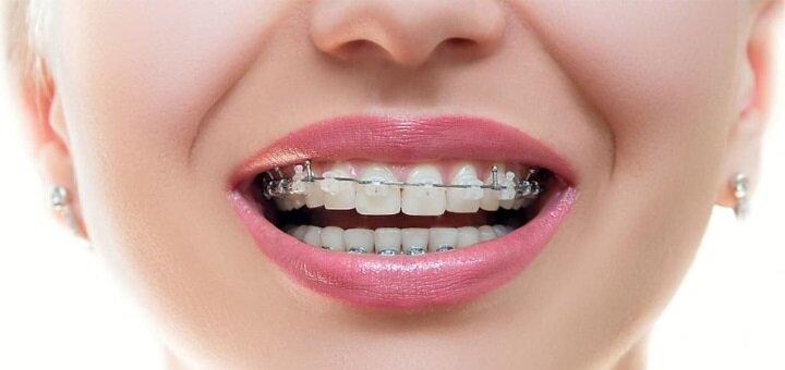 Скидка до 64% на установку брекет-системы в стоматологии «Естедент»
