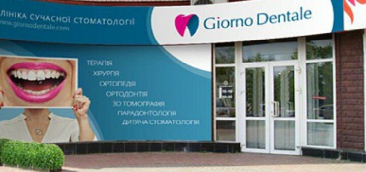 Скидка 40% на отбеливание зубов системой «Beyond» в сети клиник «Giorno Dentale»