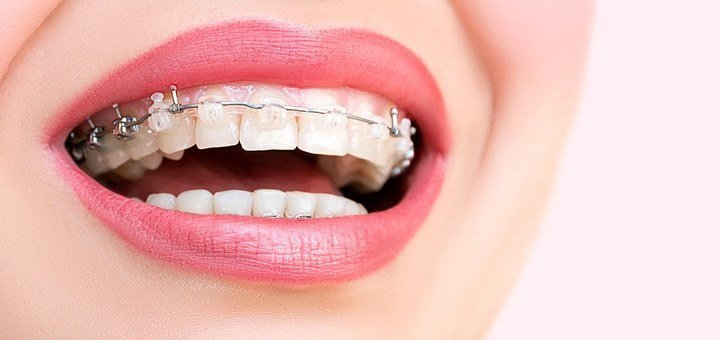 Установка брекет-системы на 1 или 2 челюсти в стоматологической клинике «Klinik im Zentrum» с оплатой в рассрочку!
